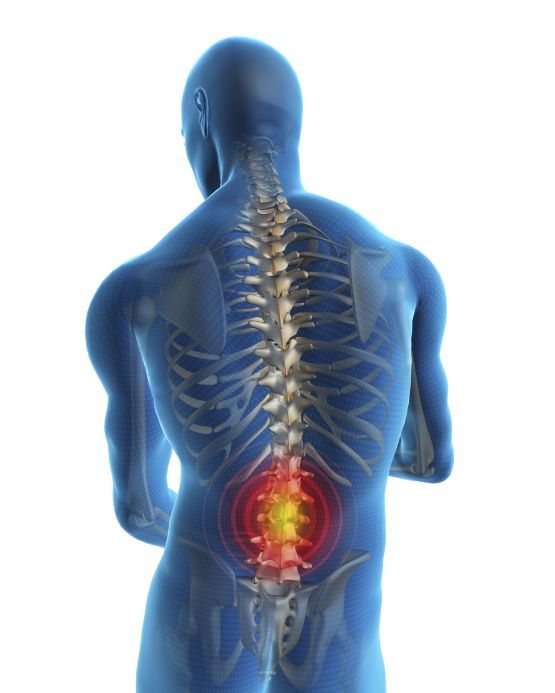 Back pain image